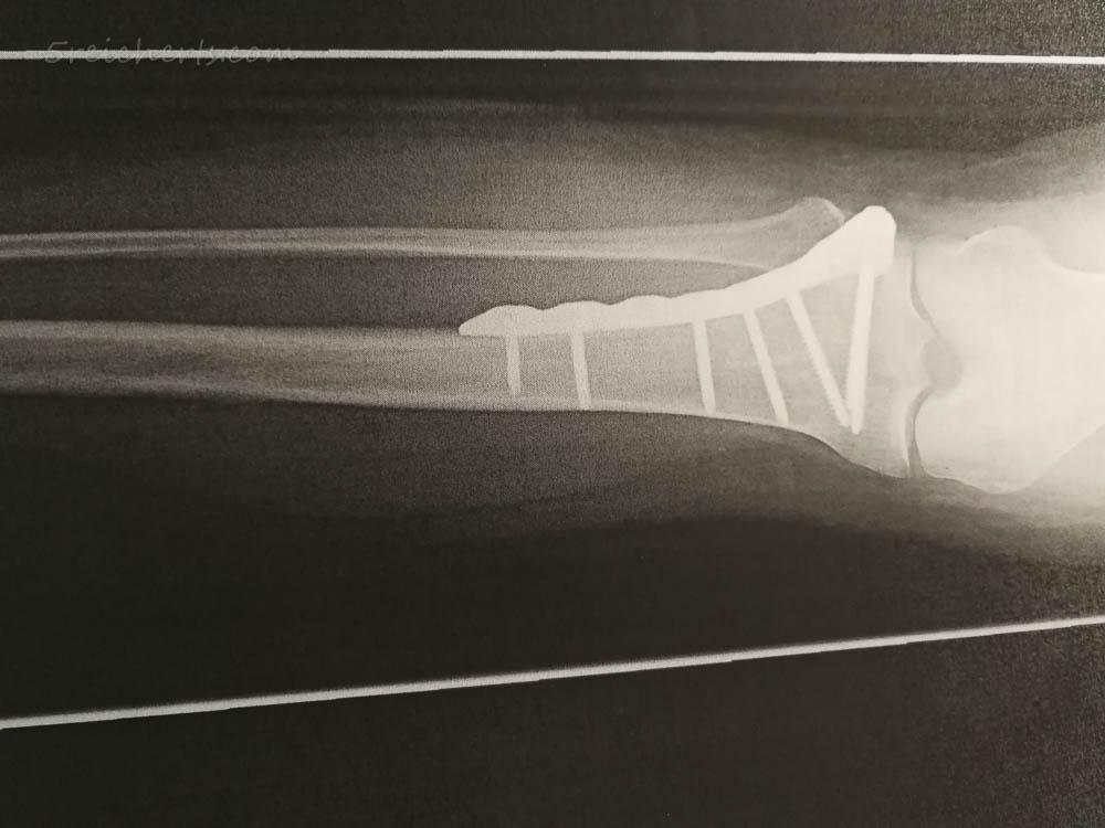Schauben und Platte im Bein