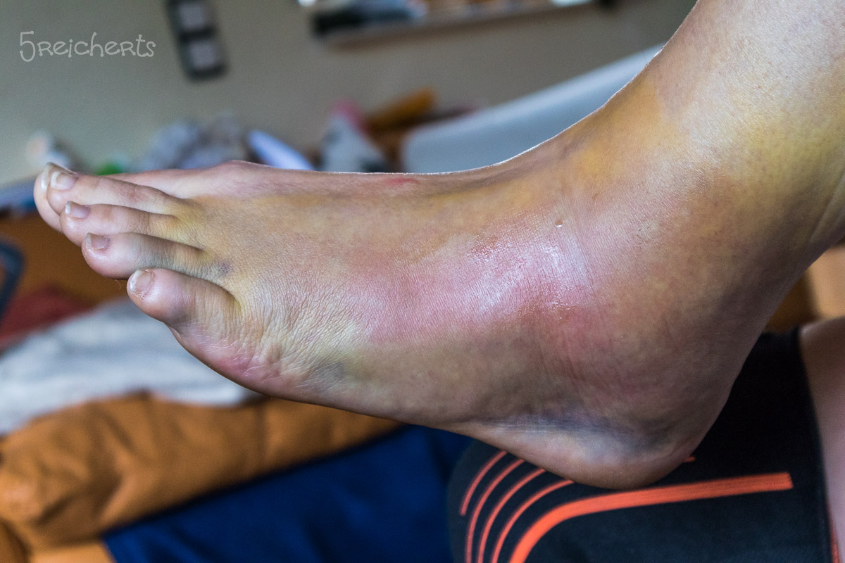 Auch ohne OP schön grün und blau und dick - mein Fuß